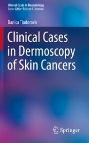 Clinical Cases in Dermoscopy of Skin Cancers ebook by Danica Tiodorovic