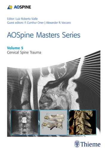 Manual vialle ebook array aospine masters series volume 5 cervical spine trauma ebook by rh fandeluxe Images
