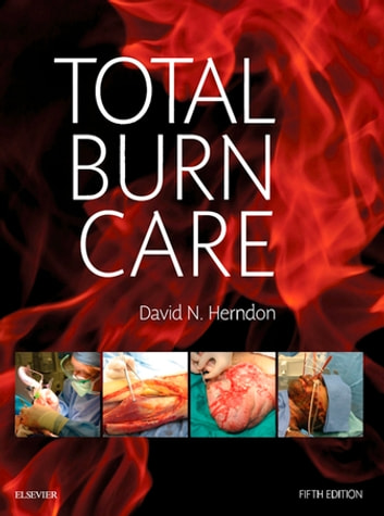 Total Burn Care E-Book ebook by David N. Herndon, MD, FACS