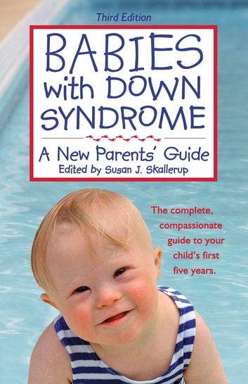 living with down syndrome essay