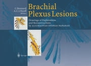 Brachial Plexus Lesions - Drawings of Explorations and Reconstructions by Algimantas Otonas Narakas ebook by C. Bonnard,A.C.J. Slooff