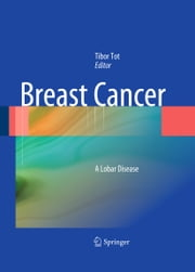 Breast Cancer - A Lobar Disease ebook by Tibor Tot