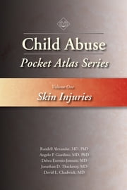 Child Abuse Pocket Atlas Series, Volume 1: Skin Injuries ebook by Randell Alexander MD, PhD, MD,...