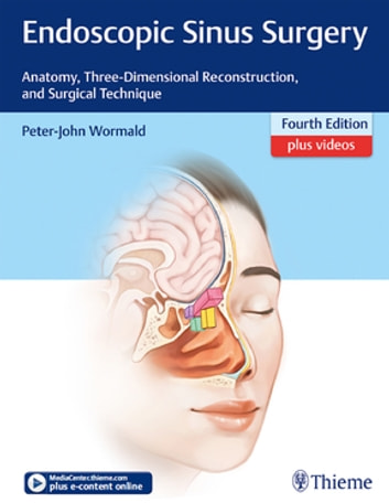 Endoscopic Sinus Surgery - Anatomy, Three-Dimensional Reconstruction, and Surgical Technique ebook by Peter J. Wormald