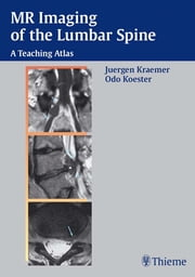 MR Imaging of the Lumbar Spine - A Teaching Atlas ebook by Juergen Kraemer, Odo Koester