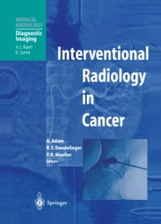 Interventional Radiology in Cancer ebook by Andreas Adam,Robert F. Dondelinger,Peter R. Mueller