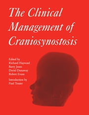 The Clinical Management of Craniosynostosis ebook by David Dunaway, Richard Hayward, Barry Jones