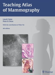 Teaching Atlas of Mammography ebook by Laszlo Tabar,Peter B. Dean