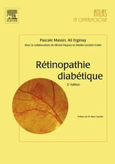 Rétinopathie diabétique ebook by Pascale Massin,Ali Erginay