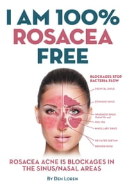 I Am 100% Rosacea Free - ROSACEA ACNE IS BLOCKAGES IN THE SINUS/NASAL AREAS ebook by Den Loren
