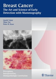 Breast Cancer - The Art and Science of Early Detection with Mammography - Perception, Interpretation, Histopathologic Correlation ebook by Laszlo Tabar,Tibor Tot,Peter B. Dean