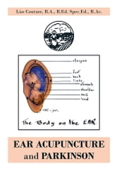 EAR ACUPUNCTURE and PARKINSON ebook by Lise Couture