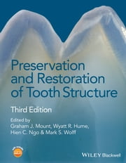 Preservation and Restoration of Tooth Structure ebook by Graham J. Mount,Wyatt R. Hume,Hien C. Ngo,Mark S. Wolff
