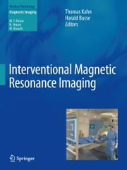 Interventional Magnetic Resonance Imaging ebook by