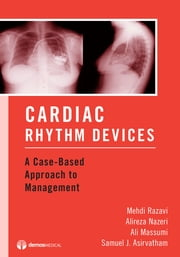 Cardiac Rhythm Devices - A Case-Based Approach to Management ebook by Samuel J. Asirvatham, MD,David Hayes, MD,Ali Massumi, MD,Alireza Nazeri, MD,Mehdi Razavi, MD
