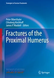 Fractures of the Proximal Humerus ebook by Peter Biberthaler,Chlodwig Kirchhoff,James P. Waddell