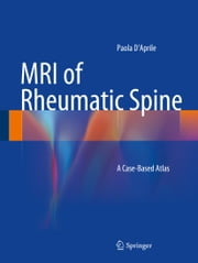 MRI of Rheumatic Spine - A Case-Based Atlas ebook by Paola D'Aprile