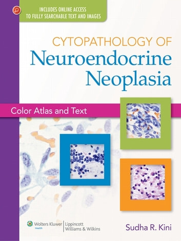 Cytopathology of Neuroendocrine Neoplasia - Color Atlas and Text ebook by Sudha R. Kini