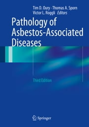 Pathology of Asbestos-Associated Diseases ebook by Tim D. Oury,Thomas A. Sporn,Victor L. Roggli
