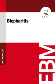 Blepharitis ebook by Sics Editore