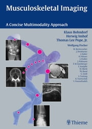 Musculoskeletal Imaging - A Concise Multimodality Approach ebook by Klaus Bohndorf,Herwig Imhof