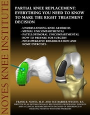 Partial Knee Replacement: Everything You Need to Know to Make the Right Treatment Decision - Understanding knee arthritis - Medial unicompartmental - Patellofemoral unicompartmental - How to prepare for surgery - Postoperative rehabilitation and home exercises ebook by Frank Noyes,Sue Barber-Westin