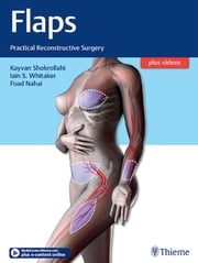 Flaps - Practical Reconstructive Surgery ebook by