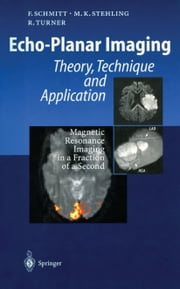 Echo-Planar Imaging - Theory, Technique and Application ebook by Franz Schmitt,P. Mansfield,Michael K. Stehling,Robert Turner