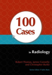 100 Cases in Radiology ebook by Thomas, Robert