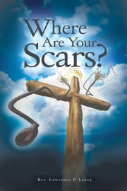 Where Are Your Scars? ebook by Rev. Lawrence P. Lakey
