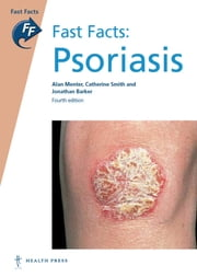 Fast Facts: Psoriasis ebook by Alan Menter, MD,Catherine Smith, MD FRCP,Jonathan Barker, MD FRCP FRCPath