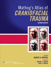 Mathog's Atlas of Craniofacial Trauma ebook by Robert H Mathog,Terry Shibuya,Michael A. Carron