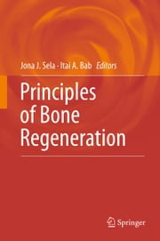 Principles of Bone Regeneration ebook by Jona J. Sela,Itai A. Bab