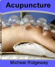 Acupuncture - The Nation's Most Influential Sourcebook On Acupuncture Points, Acupuncture and Fertility, Acupuncture Stop Smoking, Acupuncture Depression, Acupuncture Back Pain and More ebook by Micheal Ridgeway