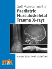 Self-assessment in Paediatric Musculoskeletal Trauma X-rays ebook by Karen Sakthivel-Wainford