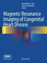 Magnetic Resonance Imaging of Congenital Heart Disease ebook by Mushabbar A. Syed,Raad H. Mohiaddin