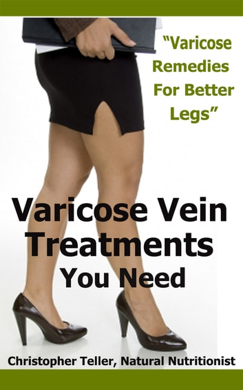 Varicose Vein Treatments You Need: Varicose Remedies for Better Legs ebook by Christopher Teller