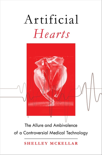 Artificial Hearts: The Allure and Ambivalence of a Controversial Medical Technology (Adult Reference) photo