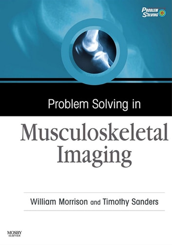 Problem Solving in Musculoskeletal Imaging E-Book ebook by William B. Morrison, MD,Timothy G. Sanders, MD