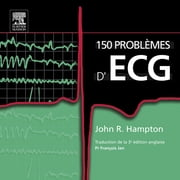 150 problèmes d'ECG ebook by John R. Hampton,François Jan,John Scott & Co