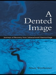 A Dented Image - Journeys of Recovery from Subarachnoid Haemorrhage ebook by Alison Wertheimer