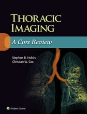 Thoracic Imaging: A Core Review ebook by Stephen Hobbs, Christian Cox