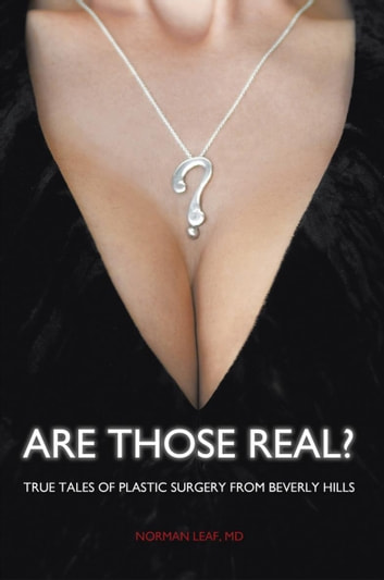 Are Those Real? - True Tales of Plastic Surgery from Beverly Hills ebook by Norman Leaf
