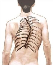 Scoliosis: Causes, Symptoms and Treatments ebook by Denny Domke