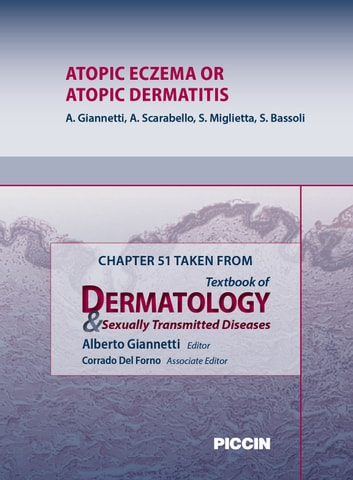 Chapter 51 Taken from Textbook of Dermatology & Sexually Trasmitted Diseases - ATOPIC ECZEMA OR ATOPIC DERMATITIS ebook by A.Giannetti,A. Scarabello,S. Miglietta
