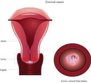 Cervical Cancer: Causes, Symptoms and Treatments ebook by Janine Tayag