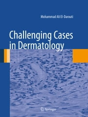 Challenging Cases in Dermatology ebook by Mohammad Ali El-Darouti