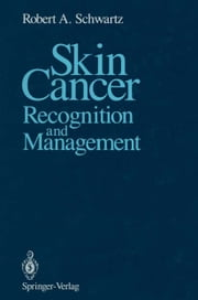 Skin Cancer - Recognition and Management ebook by Robert A. Schwartz