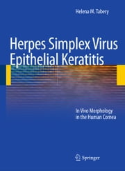 Herpes Simplex Virus Epithelial Keratitis - In Vivo Morphology in the Human Cornea ebook by Helena M. Tabery