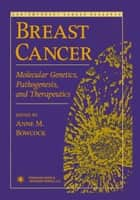 Breast Cancer ebook by Anne M. Bowcock